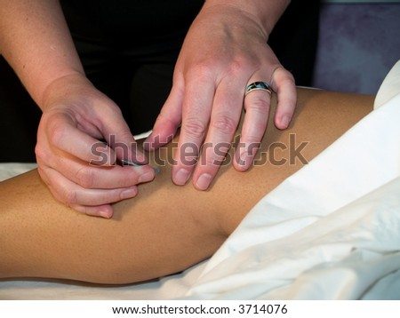 The Eastern or Asian acupuncture medical treatment said to prevent or treat a variety of medical ailments, including pain. - stock photo