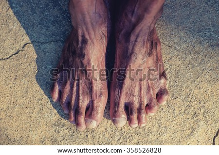 The feet of a old man