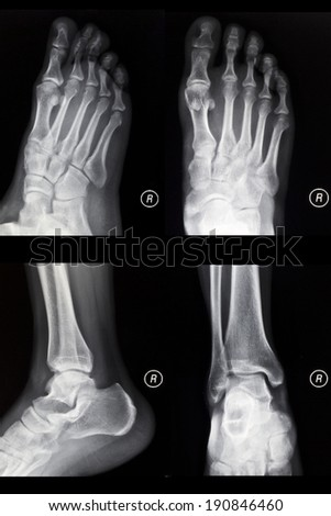 The foot is oblique, ankle lateral, X-ray film