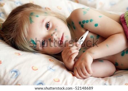 The girl, a sick chickenpox, temperature measurement - stock photo