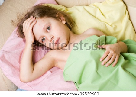 The girl fell ill with chickenpox - stock photo