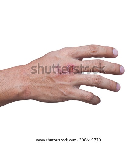 The hand bruise On a white background