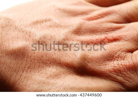 The hand external skin see the texture of blood vessel under the outer skin represent the healthcare concept related idea.