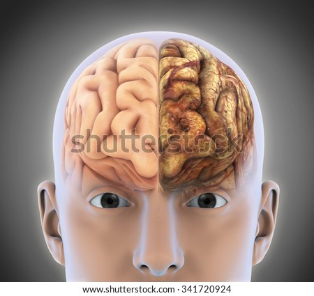 The Healthy Brain and The Unhealthy Brain - stock photo