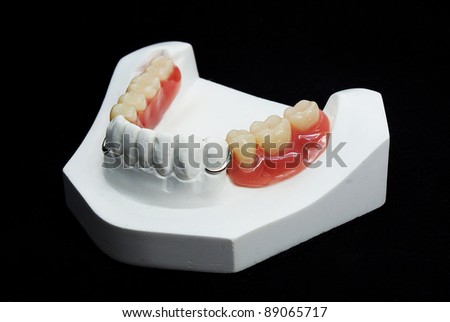 The image of dentures - stock photo