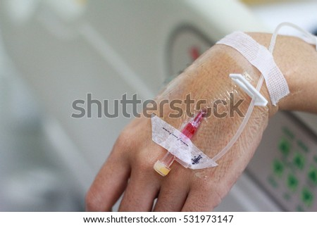 the intravenous fluid in a patient hand.Close up.