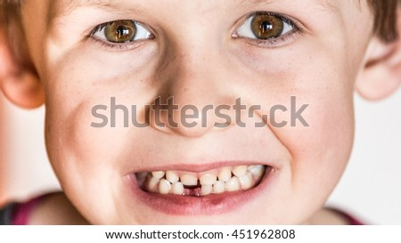 The little boy smiles and shows the gap after the first tooth falling out .