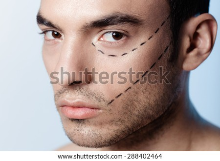 The man on the face is marked with guides before surgery filling wrinkles, crow's feet, injection of hyaluronic acid, plastic operation - stock photo