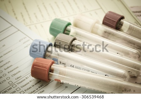 The old blood tubes for test on request form medical testing in Laboratory. - stock photo