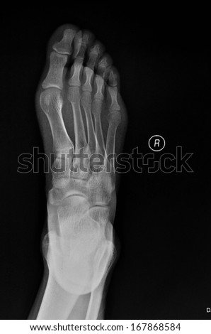 The right foot is position X-ray - stock photo