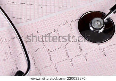 The tape with the cardiogram of man - stock photo