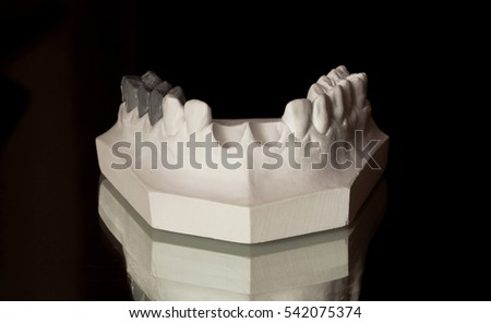 the upper part of the jaw, the upper jaw of plaster