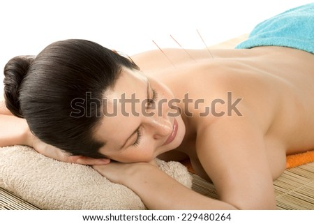 the very  pretty  young woman on acupuncture treatment , horizontal  portrait - stock photo