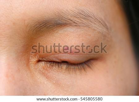 Fleck In Eye