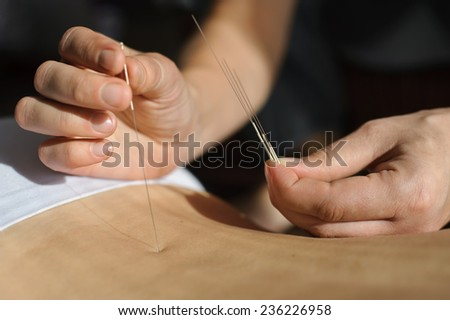 Therapist with one hand holding the needle with the other hand enters their desired point on the patient's back - stock photo