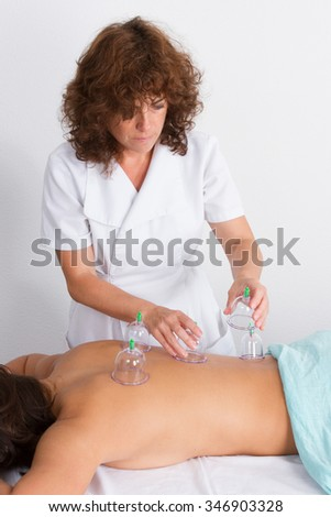 Therapist woman who just underwent an acupuncture cupping treatment