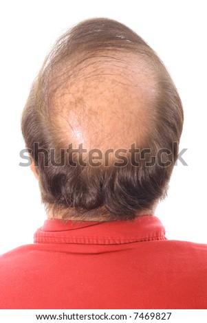 thinning hair - stock photo