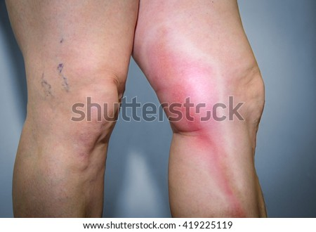 Thrombophlebitis in human leg. Painful inflammation of the leg veins. Medical issue
