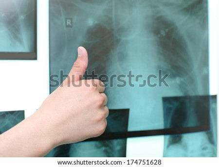 Thumb up on the background of the X-ray images  - stock photo