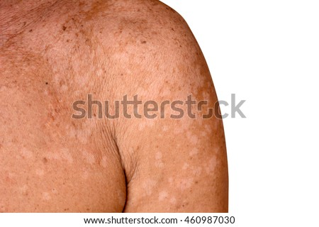 Tinea versicolor/Pityriasis versicolor on the skin
