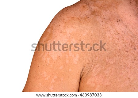 Lang ben / lang ben trên da