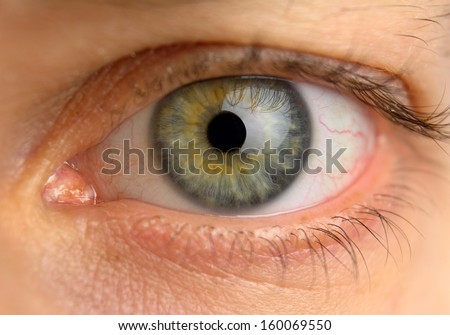 tired man eye with blood vessels, front view - stock photo