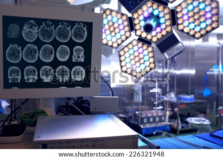 Tomogram of the patient in the neurosurgical operating room  - stock photo