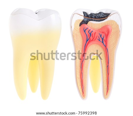tooth anatomy (vital tooth, structure, bone, ligament) isolated on white background - stock photo