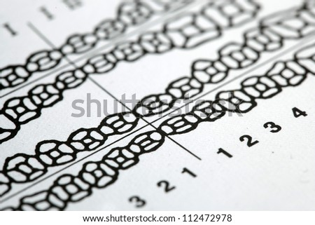Tooth card dental map - stock photo