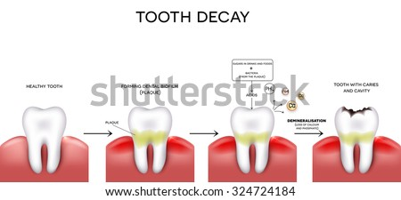 Tooth decay formation step by step, healthy tooth, forming dental plaque and finally caries and cavity - stock photo