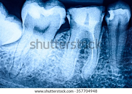 Tooth Decay On X-Ray - stock photo