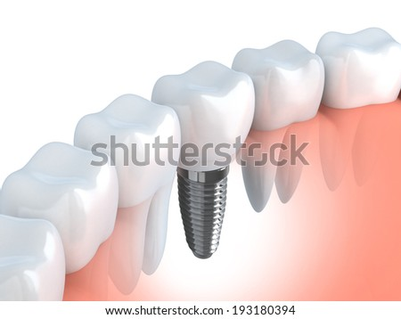 Tooth human implant (done in 3d graphics)  - stock photo
