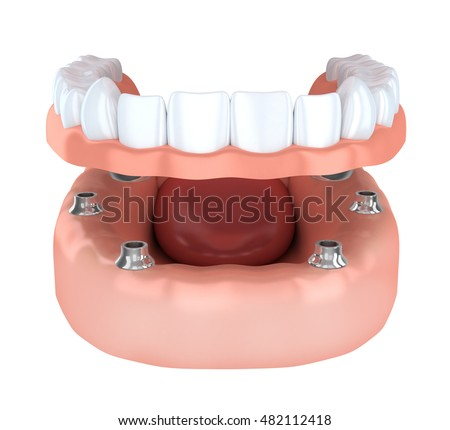 Tooth human implantation, denture (done in 3d rendering)