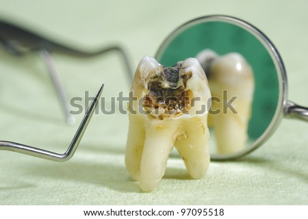 tooth with caries - stock photo