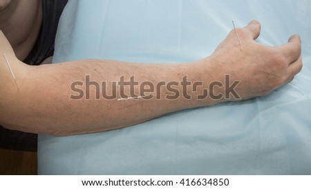 Treatment of patients with glenohumeral joint acupuncture - stock photo