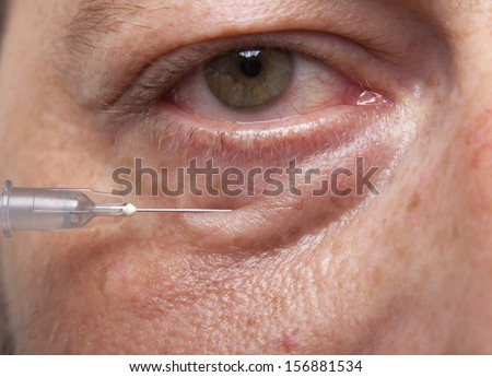 Treatment with botox hyaluronic collagen HA injection