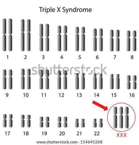 Triple X syndrome - stock photo