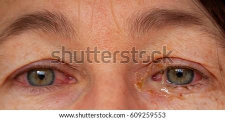 Conjunctivitis Stock Images  RoyaltyFree Images   Vectors   Shutterstock