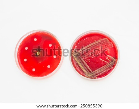 Two Petri dishes with bacteria growing in them.Medical tests and research. Bacterial colonies in hospital laboratory glassware. - stock photo