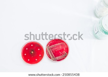Two Petri dishes with bacteria growing in them. Medical tests and research. Bacterial colonies in hospital laboratory glassware. - stock photo