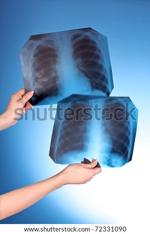 Two X-Ray Images of chest on blue background in hand