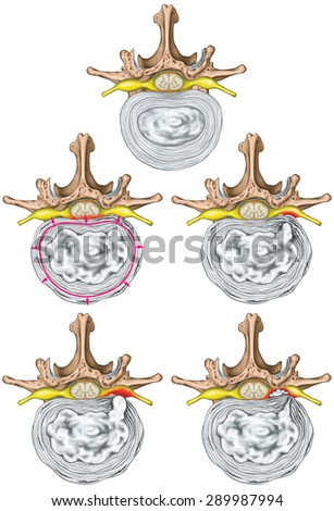 Types and stages of lumbar disc herniation, herniated disc, nuclear herniation, disc bulge, protrusion, extrusion, sequestration, lumbar vertebra, intervertebral disk, vertebral bones, superior view - stock photo