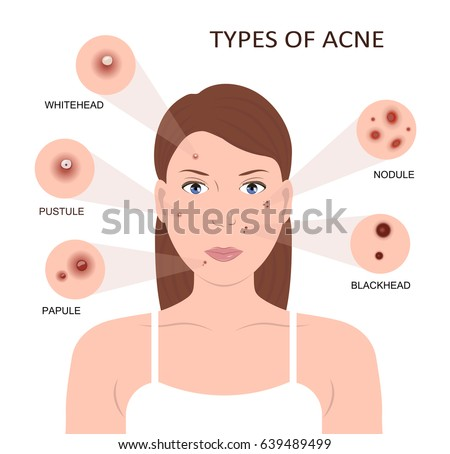 Types Acne Girl Skin Problems Woman Stock Illustration ...