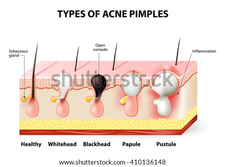 types acne pimples healthy skin whiteheads stock vector 248595325, Skeleton