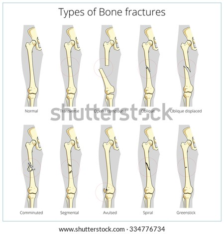 bone fracture stock images, royalty-free images & vectors, Human Body