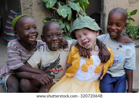 UKEREWE - TANZANIA - JULY 2, 2015: Unidentified albino child and boys on July 2, 2015 in Ukerewe, Tanzania. Many traditional healers have been arrested recently in Tanzania because of albino murders - stock photo