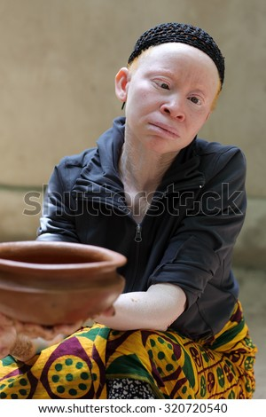 UKEREWE - TANZANIA - JULY 2, 2015: Unidentified albino woman on July 2, 2015 in Ukerewe, Tanzania. Many traditional healers have been arrested recently in Tanzania because of albino murders - stock photo