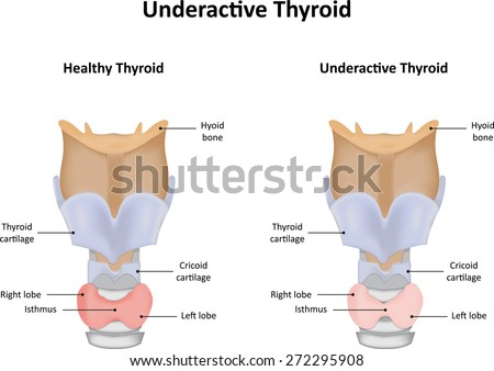 Underactive Thyroid Gland - stock photo