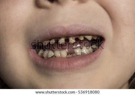 tooth decay stock images, royalty-free images & vectors | shutterstock, Human Body