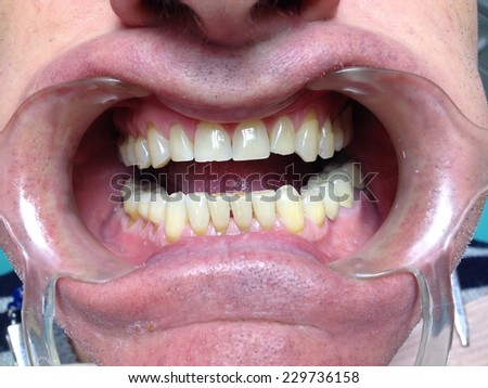 Unhealthy denture and teeth abrasion result of incorrect teeth cleaning - stock photo